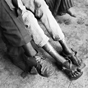 blind-people-in-afrika-4